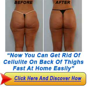 What You Need to Get Rid Cellulite? 4