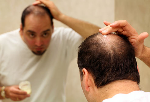 Effective Hair Thinning Remedies
