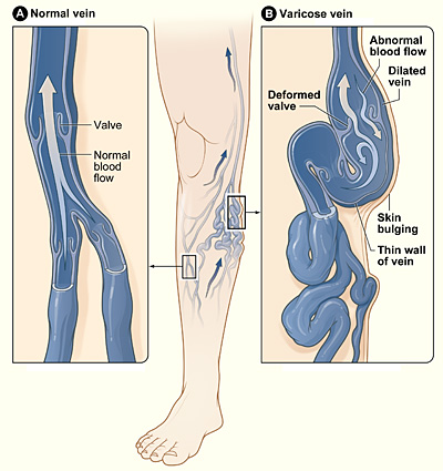 How to prevent varicose veins naturally?