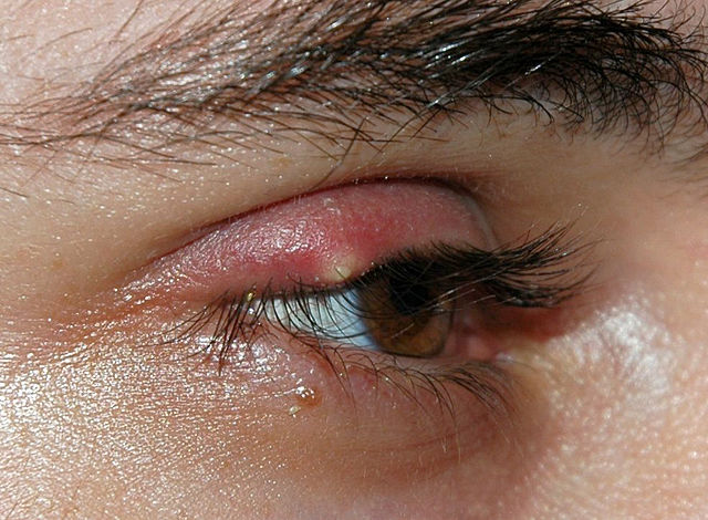 How to cure a stye?
