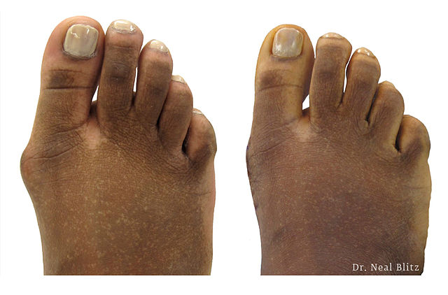 How To Cure A Bunion