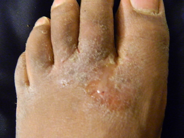How To Cure Athlete's Foot Naturally