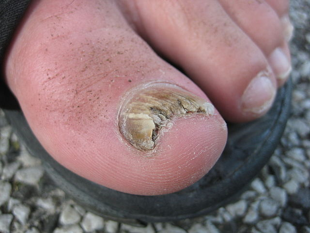 How To Cure Fungus On Toenails