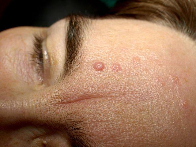 How To Cure Seborrheic Dermatitis