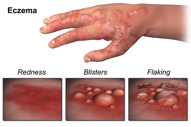 How To Cure Eczema Fast