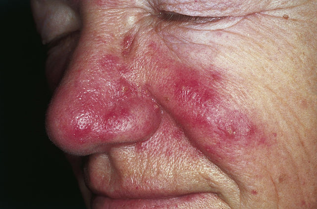 How To Cure Rosacea