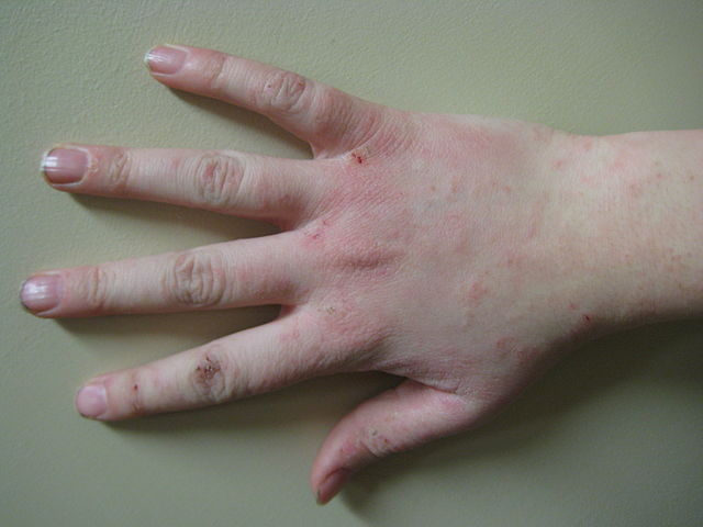 How To Cure Eczema On Hands