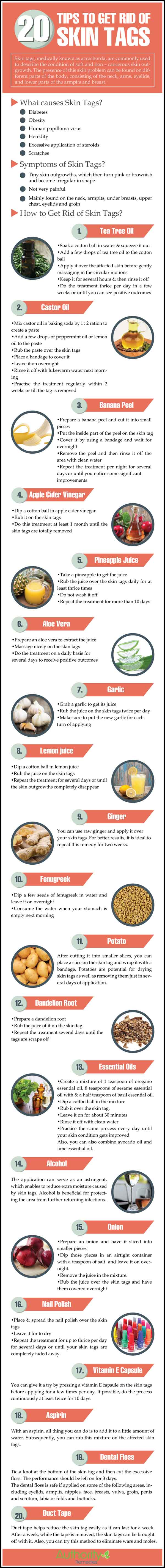 Top Home Remedies for Skin Tags<span class=