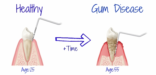How To Grow Back Your Receding Gum With Waterpik