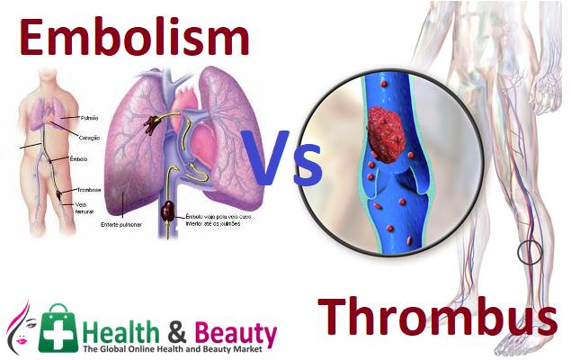 Embolism Vs Thrombus