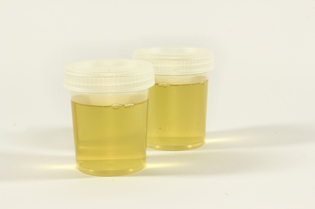 The types of urine test