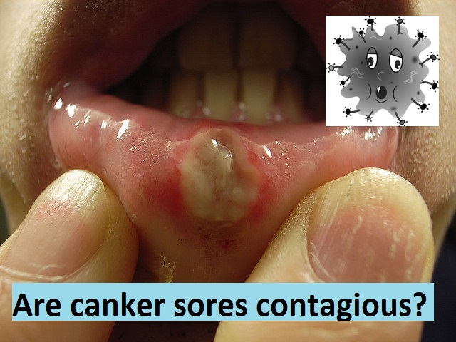 Are canker sores contagious?