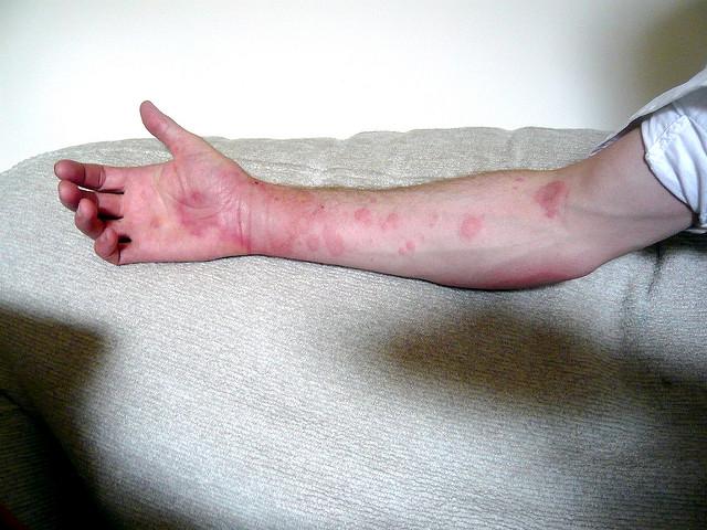 Chronic idiopathic urticaria
