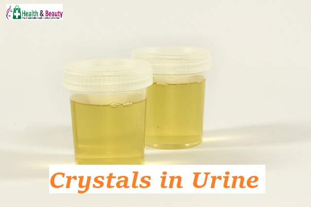 Crystals in Urine