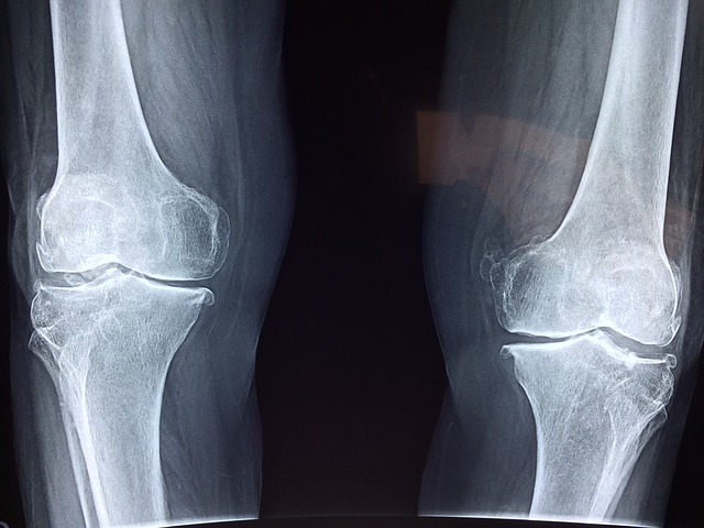 Knee Replacement Recovery Time