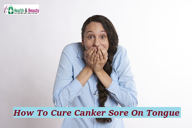 How To Cure Canker Sore On Tongue