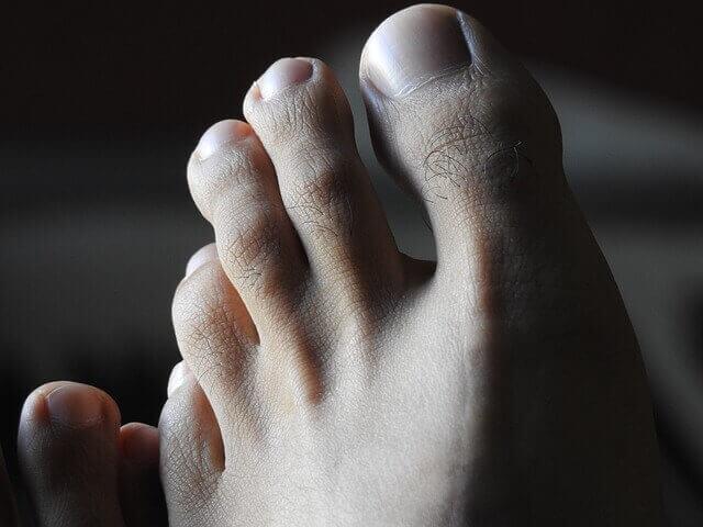 Big Toe Numb