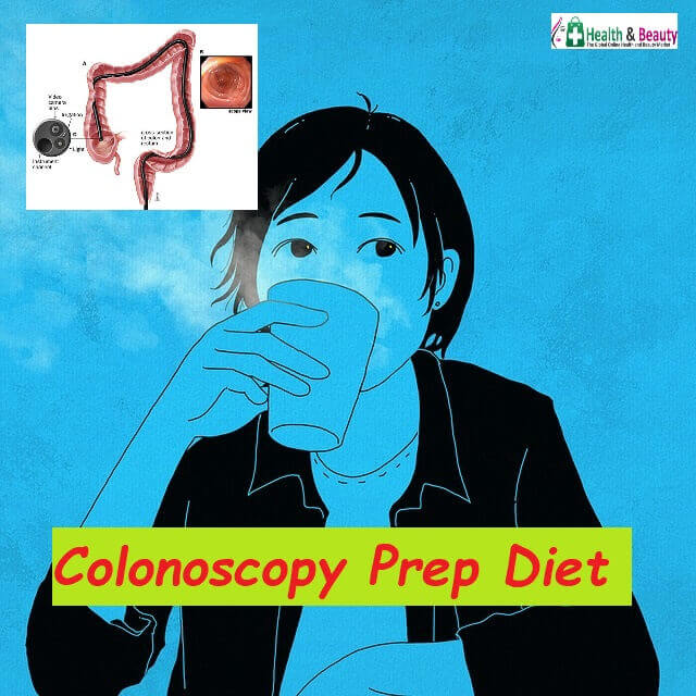 Colonoscopy Prep Diet