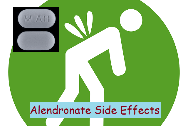 Severe Alendronate Side Effects