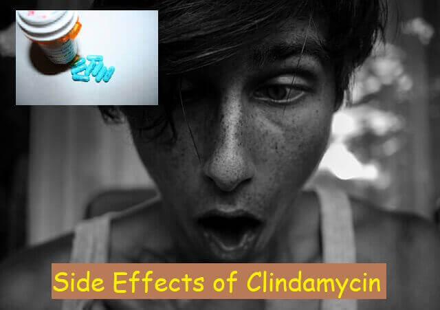 Side Effects of Clindamycin