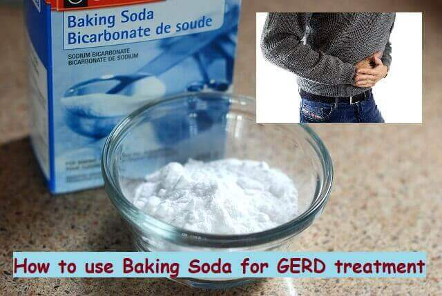 Baking Soda for GERD