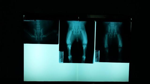 Hip Fracture Symptoms