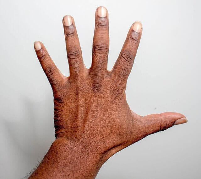 Colles Wrist Fracture Diagnosis