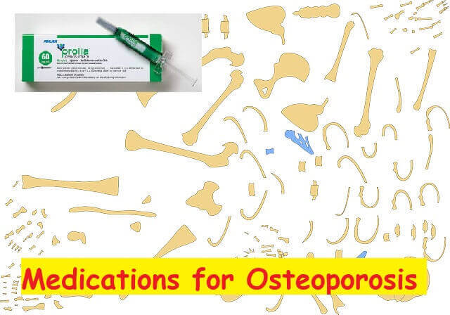 Medications for Osteoporosis - Denosumab