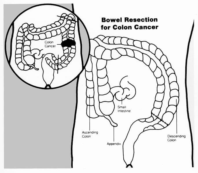 Small Bowel Resection