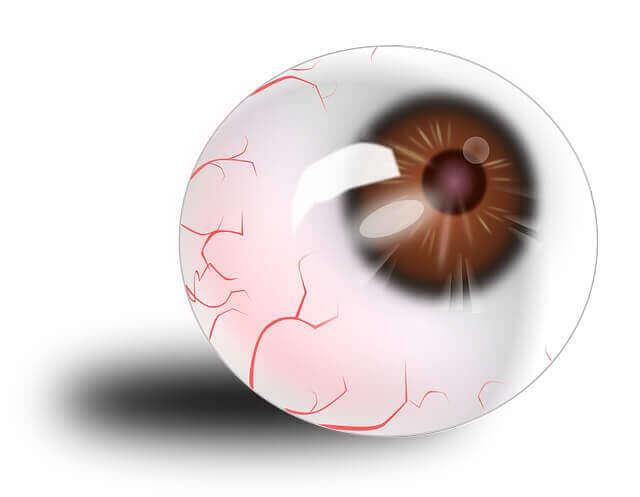 Stroke In Eye