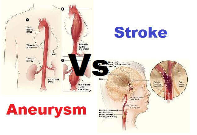 Aneurysm Vs Stroke: Definition, 7 Symptoms, and Causes 1
