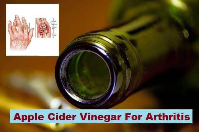 8 Ways To Use Apple Cider Vinegar For Arthritis 1
