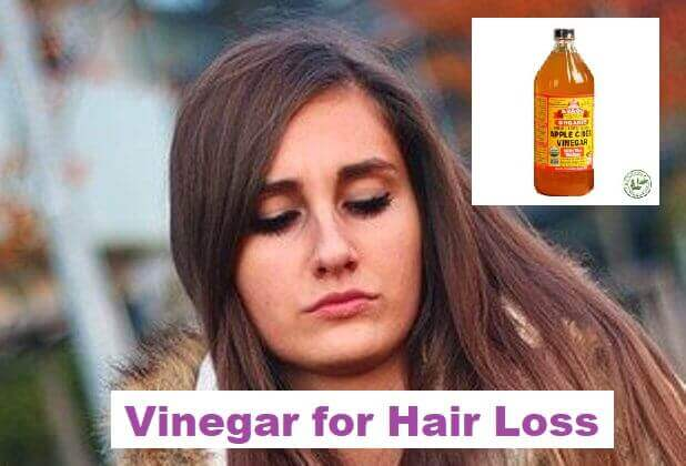 Vinegar for Hair Loss