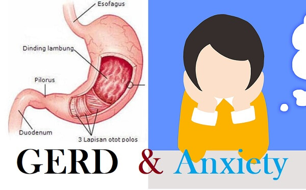 GERD and Anxiety