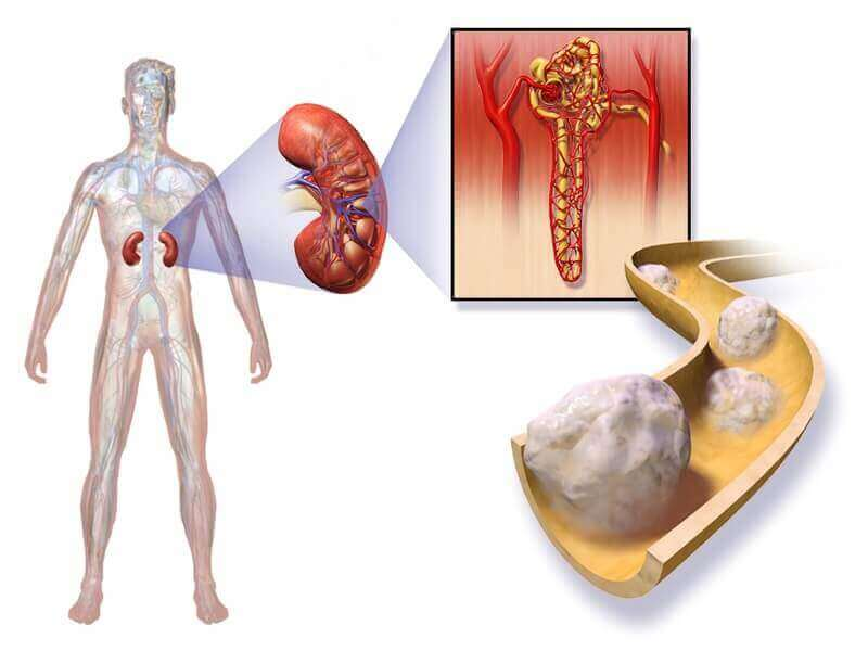 Cancer Of The Kidney