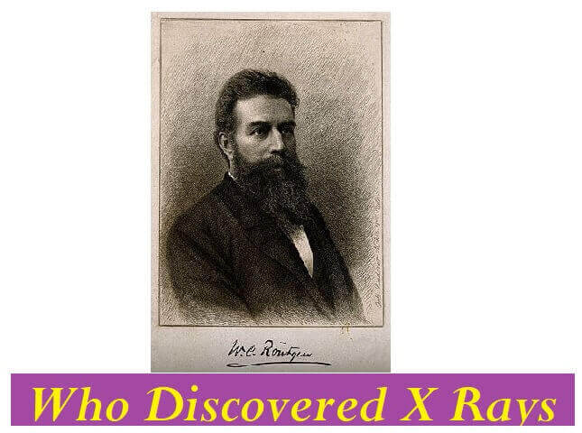 Who Discovered X Rays -Rontgen