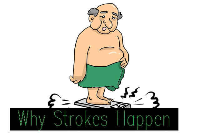Why Strokes Happen - Obesity