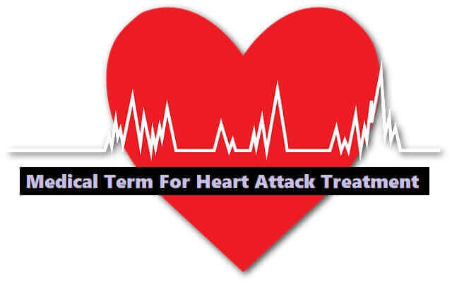 Medical Term For Heart Attack - Treatment