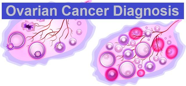 Ovarian Cancer Diagnosis