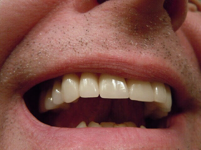 Human Tooth Anatomy