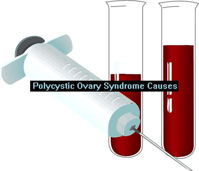 Polycystic Ovary Syndrome Causes