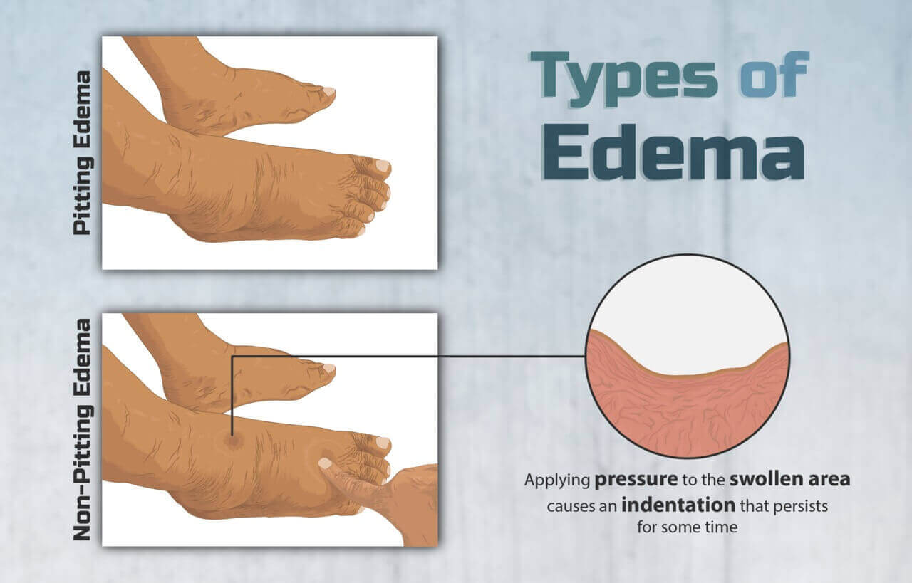What Is Edema