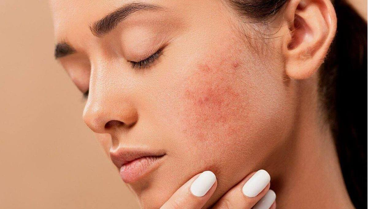 How To Get Rid of Pimple Under Skin